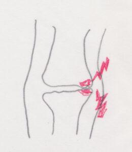 膝関節の損傷の痛み